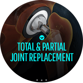 Total & Partial Joint Replacement