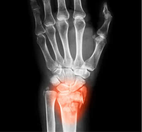 Advanced Orthopedic Center - Hand Disorders and Upper Extremity Care